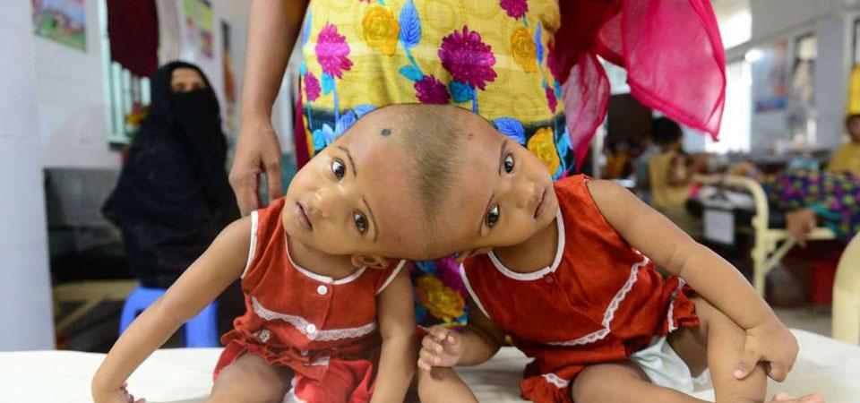 Kembar Siam Bangladesh Tunggu Rekomendasi Medis RS