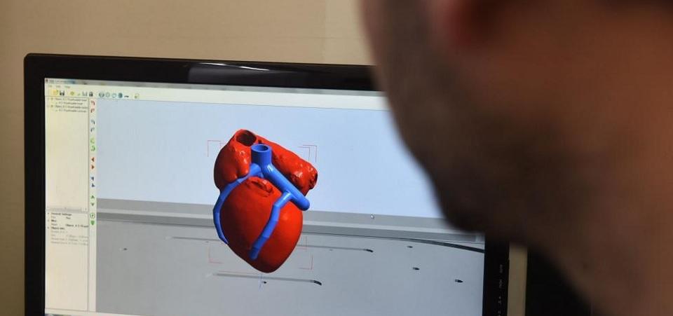 Ilmuwan Sukses Cetak Jantung 3D Pertama di dunia Gunakan Sel Pasien Sendiri