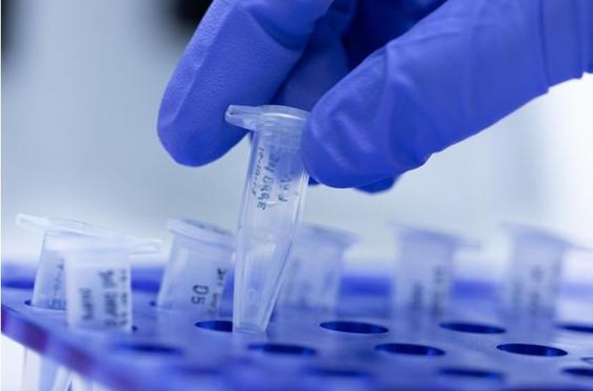 Pemprov DKI Antisipasi Peningkatan Tes PCR Covid-19