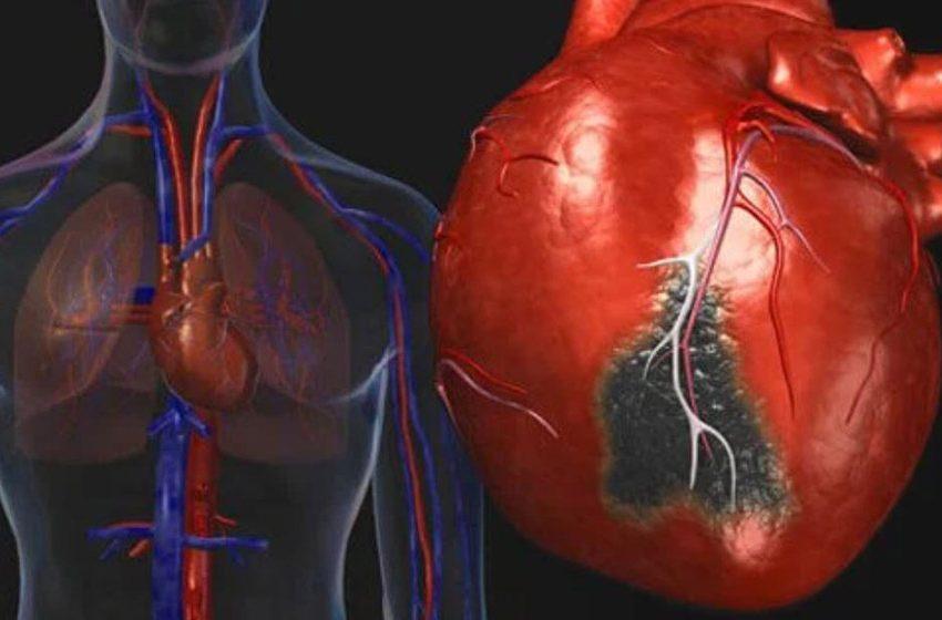 Penyakit Jantung Koroner Banyak Diderita Masyarakat Kota